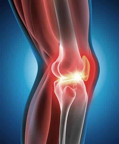 Lesioni della cartilagine ed osteocondrali