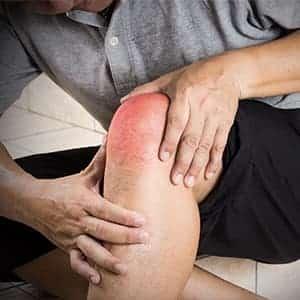 Lesioni della cartilagine ed osteocondrali: ecco cosa sapere